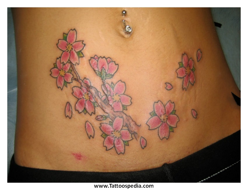 Do tattoos cover up acne scars 6 for Covering scars with tattoo before and after