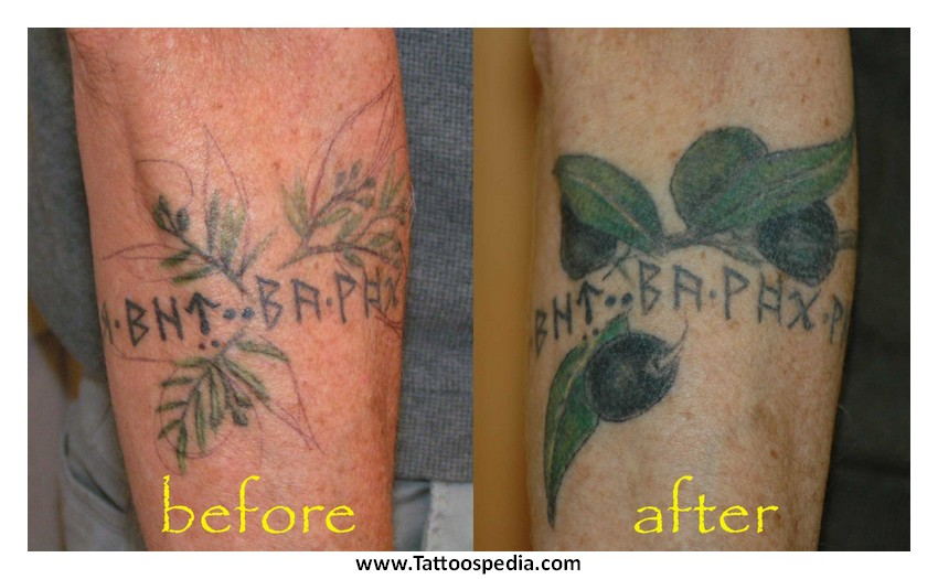 Tattoo Cover Up For Stretch Marks 7 |