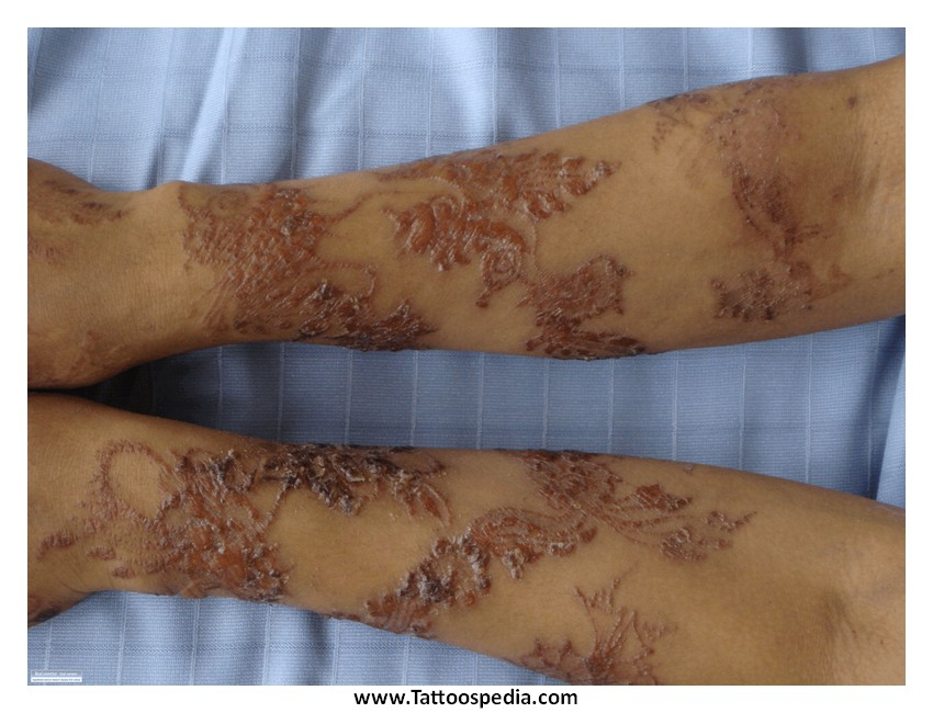 Henna tattoo infection 3 for How to treat an infected tattoo at home