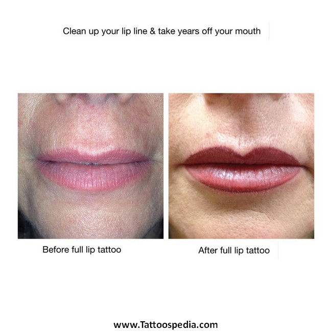 Lip Liner Tattoo Before And After 1 |