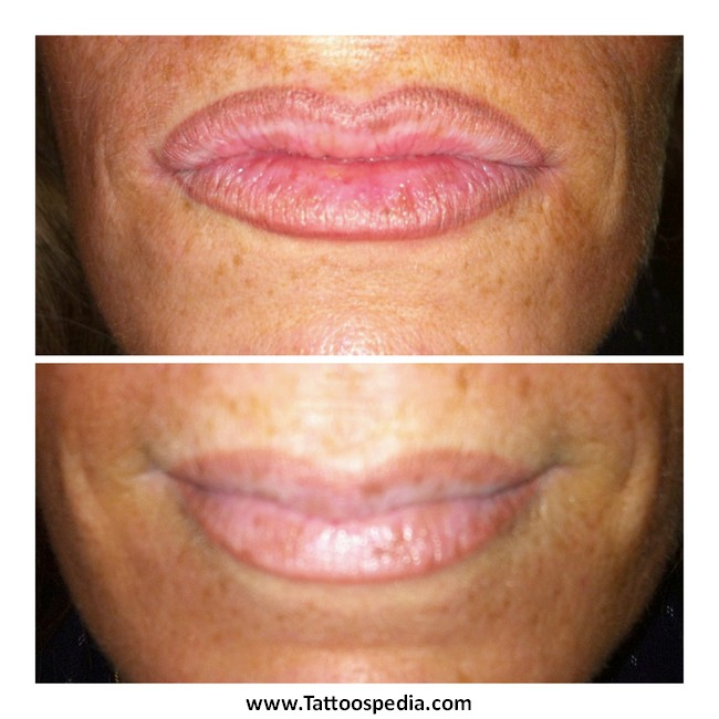 Lip Liner Tattoo Before And After 3 |