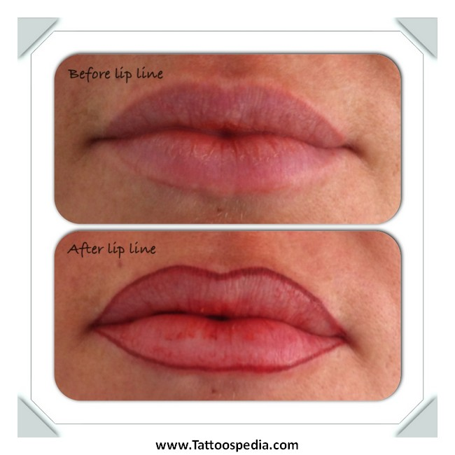Lip Liner Tattoo Before And After 7 |