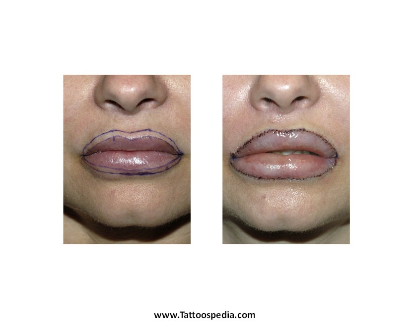 Lip tattoo removal cost 6 for What is the cost of tattoo removal