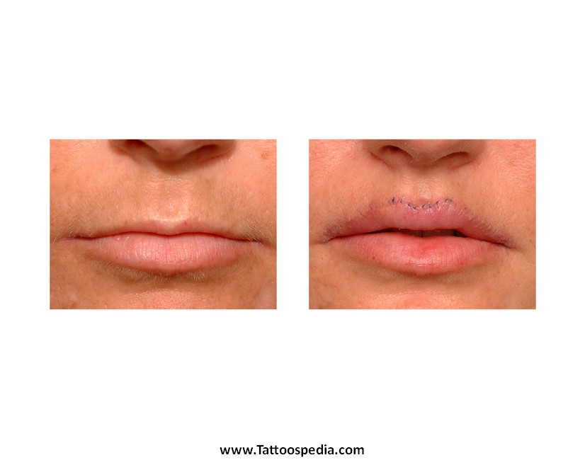 Lip tattoo removal cost 7 for Lip tattoo fade